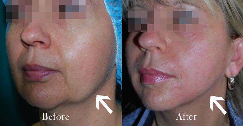 Before and after Morpheus8 treatments