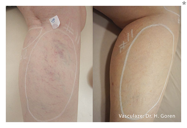 Before and after Vasculaze treatments